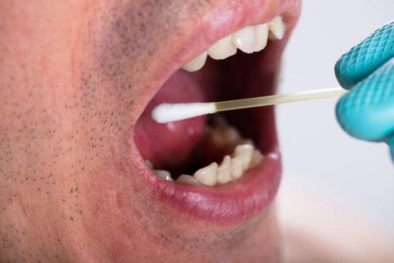 鼻胃管灌食注意事項:口腔清潔不可少